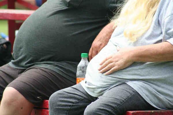 Obésité, le risque de mortalité largement sous-estimé